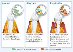 Mikrobiologische Diagnostik in der Therapie von Parodontalerkrankungen im Alter