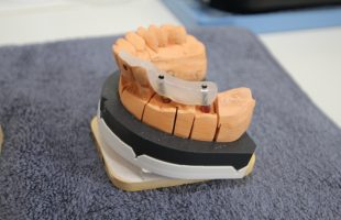 Prothetische Versorgung mit einer implantatgetragenen Brücke aus Zirkonoxid
