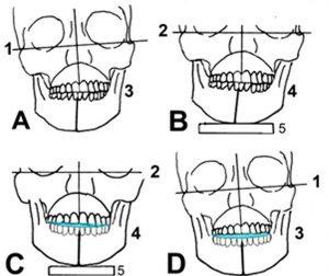 Iatrogene Zahnlängenänderungen Teil 2