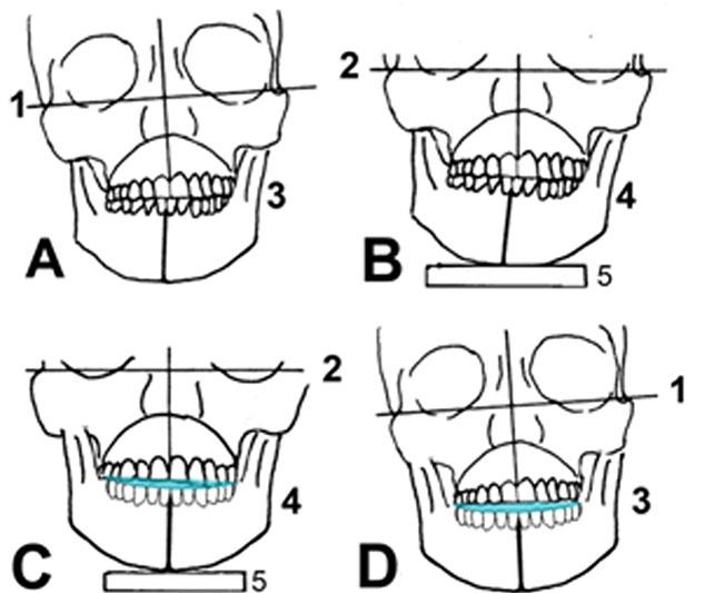 Abb. 1; A In-vivo-Kopfhaltung bei Erstdiagnostik B einartikulierte Modelle C mit Unterkieferschiene im Artikulator D mit Unterkieferschiene in vivo: schräge Kopfhaltung des Patienten, in die Symmetrie gezwungen. 1 Ohrachse in vivo, 2 Ohrachse im Artikulator, 3 Unterkieferposition in vivo, 4 Unterkieferposition im Artikulator 5 Sockel Artikulator