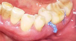 Abbildung 6 Parodontitisbehandlung Ausgabe 04 2016