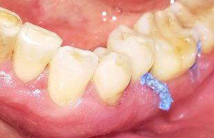 Parodontitisbehandlung auch ohne Antibiotika