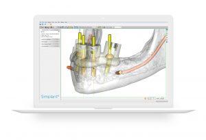 Simplant Pro 18 – die neue Software-Generation