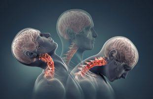 CMD und pathologische Schluckstörung