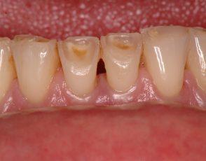 Dokumentation nichtkariöser Zahnhartsubstanzschäden mittels des ZahnAbnutzungsBewertungsSystem (ABS)
