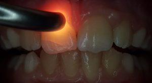 Abb. 3: Bei genauerer Untersuchung mit Kaltlicht/FOTI wird ein Riss des Zahnschmelzes (Schmelzinfraktion) an Zahn 11 sichtbar. Daraufhin wurde der Patient spezifisch zum dentalen Trauma mithilfe eines Traumadokumentationsbogens systematisch befragt und die Angaben erfasst. (Foto: ZA Mourad)
