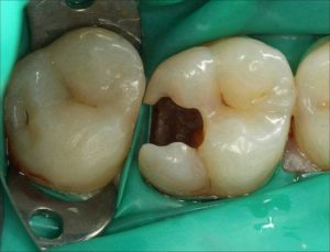 Abb. 3: Nach Entfernen der Füllung, Kavitätenpräparation, Glätten der Ränder und Legen des Kofferdam (in dieser Reihenfolge) ist die Ausdehnung des Defekts am – vitalen – Zahn 16 gut zu erkennen.