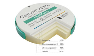DE Cercon Xt Multilayer2