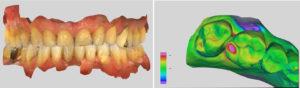 Dynamisches Digitales Modell als fester Bestandteil der Zahnärztlichen Untersuchung