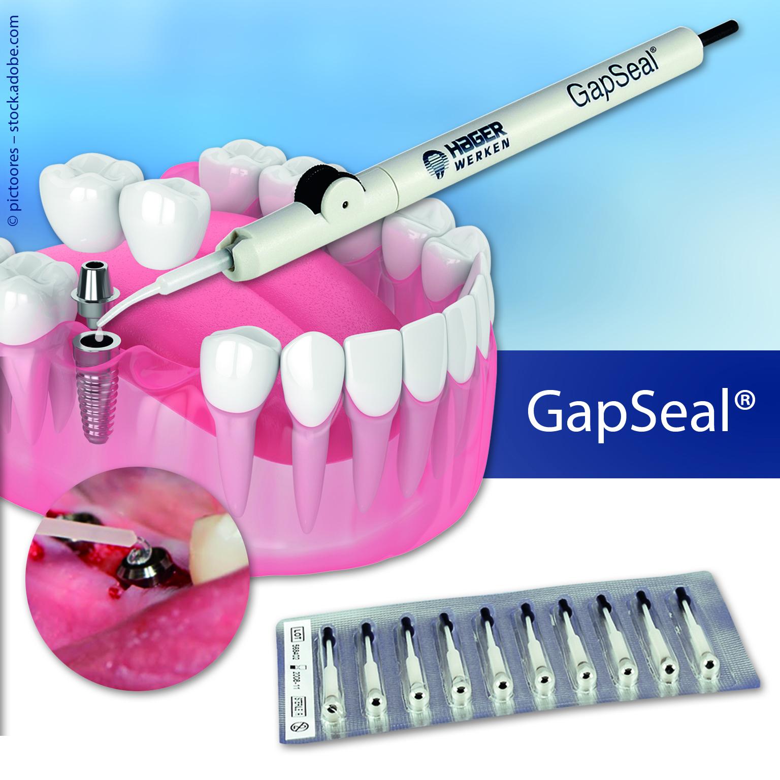 GapSeal® - Der entscheidende Beitrag gegen Periimplantitis.