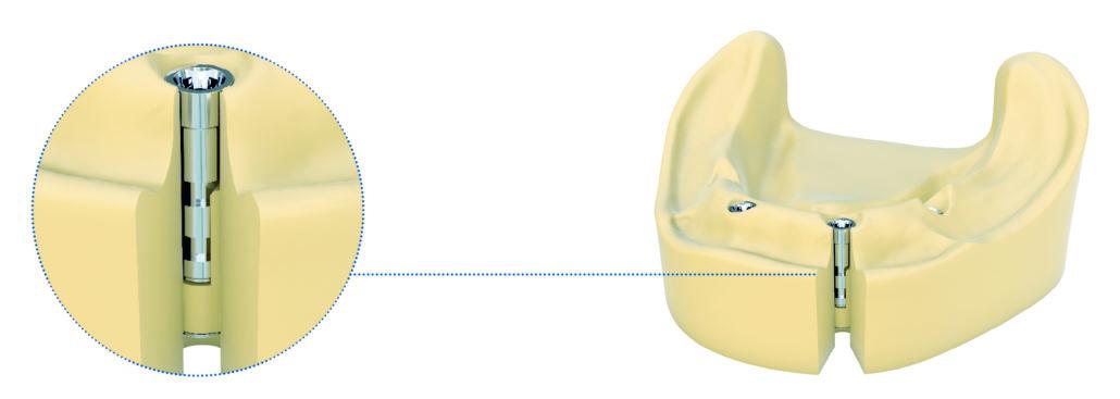 Dentaurum Implants stellt das neue tioLogic® TWINFIT Laborimplantat vor.