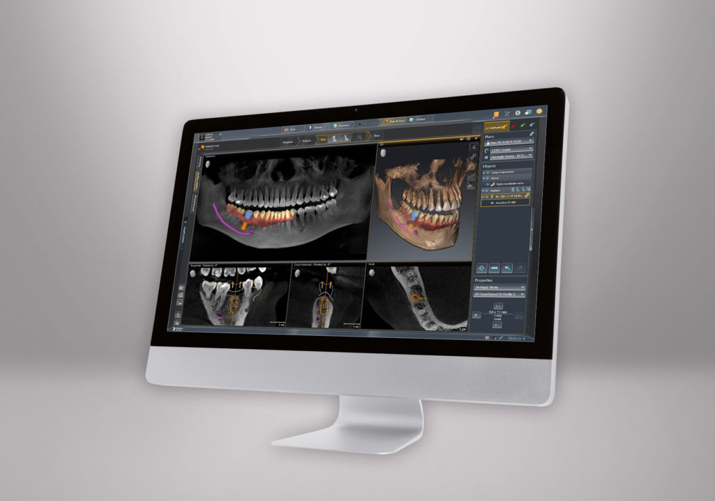 Moderne und intuitive Implantologie mit der neuen SICAT Implant 2.0.