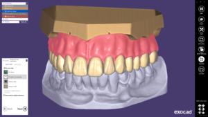 Das neue Plovdiv Release ermöglicht das Gestalten von Einzelkieferprothesen. Die vereinfachte Modellanalyse basiert auf der Gegenkiefer-Situation. Die prothetische Zahnaufstellung wird mit weniger Klicks definiert. Mit dem optionalen Virtual Articulator Modul können die Prothesenzähne an die Exkursionsbewegungen des Antagonisten angepasst werden.