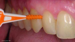 Der TePe EasyPick<sup>™</sup> ist eine einfache und effiziente Möglichkeit, die Lücken zwischen den Zähnen zu reinigen.