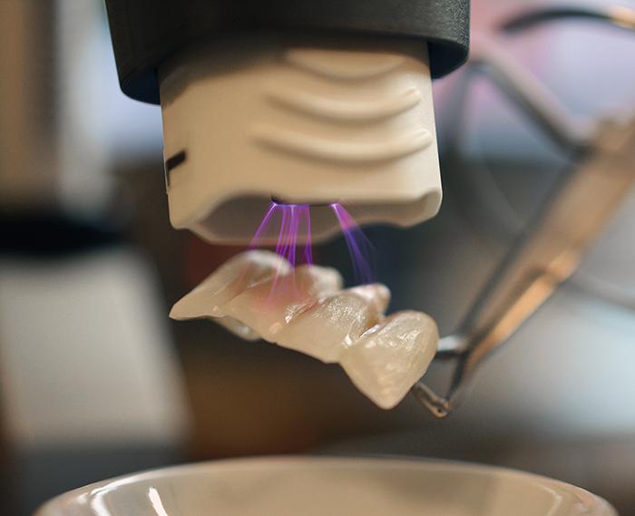 Plasma im Dentallabor zur Behandlung von Prothetik