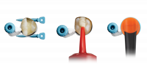Eine echte Alternative, um Patienten mit einer zahnfarbenen Restauration schnell, sicher und permanent zu versorgen: Seitenzahnrestauration mit dem neuen Surefil one.