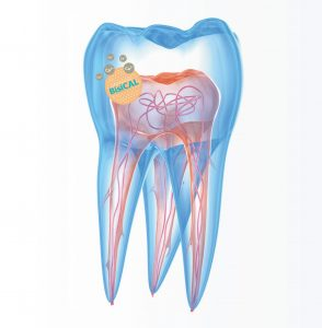 Zahn BisiCAL