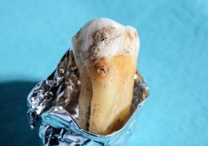 Neue Studie vergleicht fossilen Zahnstein