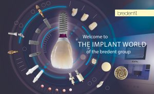 Die bredent group bietet Implantatsysteme mit einzigartigen prothetischen Lösungen und physiologische Gerüst- und Verblendmaterialien.